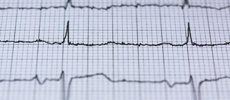 Kardiogram serce po angielsku